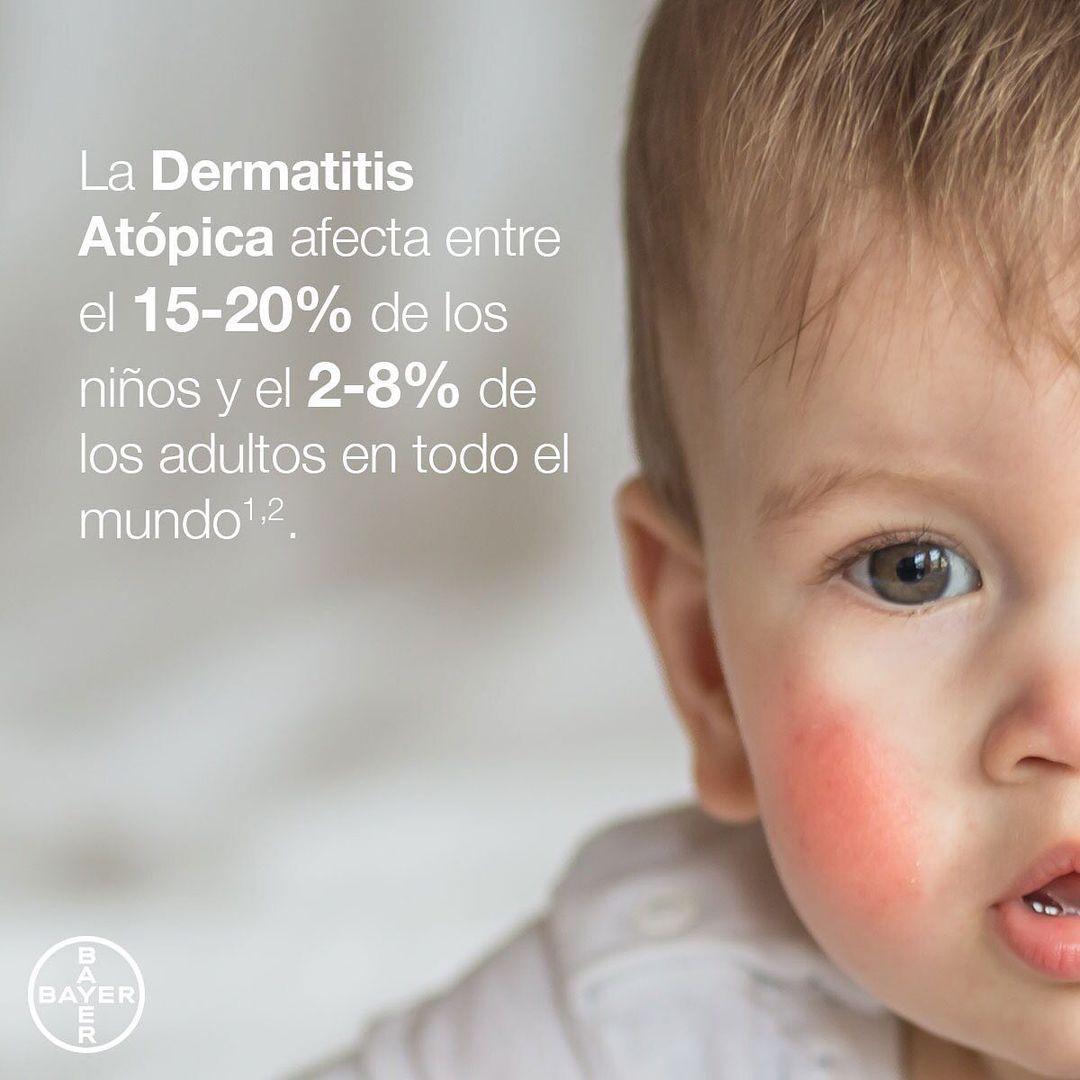 Los síntomas de la Dermatitis Atópica varían entre las personas, pero en sus formas más graves puede ser tan fuerte que hace que la calidad de vida de los que la sufrimos empeore de manera significativa